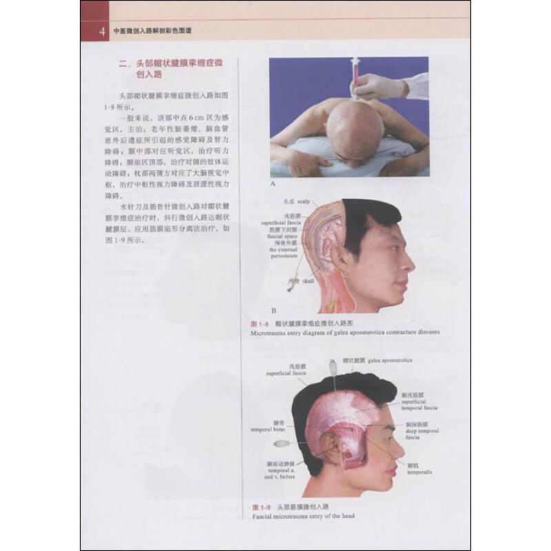 第二节 肩部肌肉分布及微创入路     第三节 肩部骨关节结构