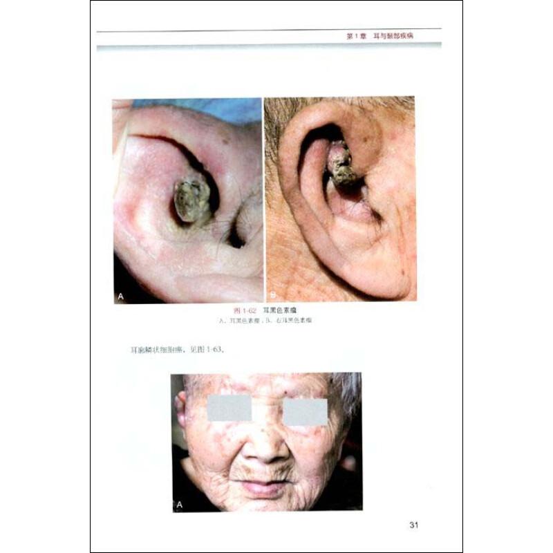 第6章 气管与食管疾病 第一节 气管,支气管异物 第二节 食管异物 第三