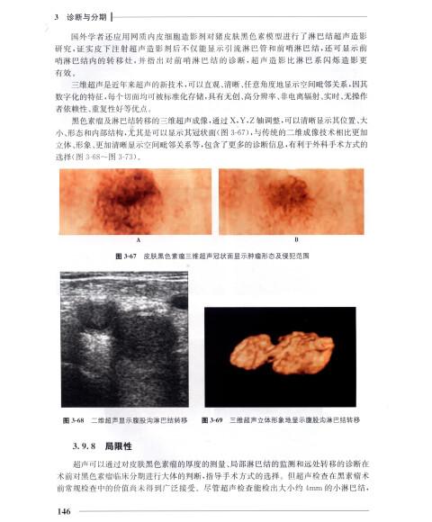 黑色素瘤早期囹�a_黑色素瘤 [melanoma]