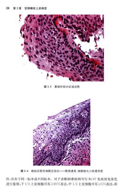 子宫颈及子宫内膜活检病理解读(翻译版) 简介,