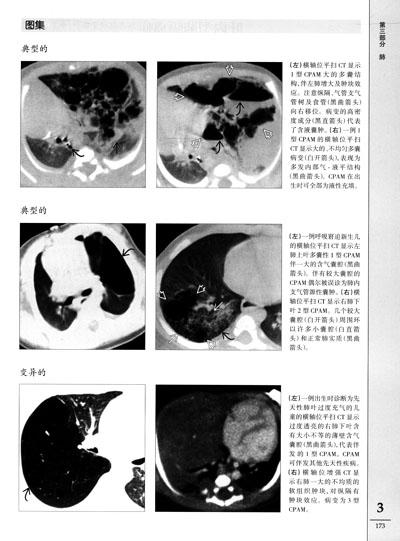 诊-求助诊断 肺部ct图像图片