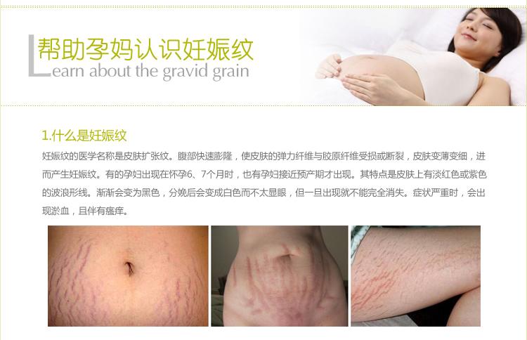 孕妇妊娠纹用橄榄油_