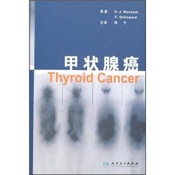 甲状腺癌 电子书下载