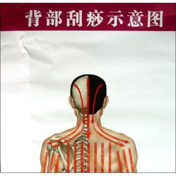背部刮痧示意图气管炎哮喘保健图解\/常见病保