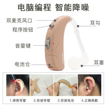 达人说峰力Q15-UP助听器怎么样?内幕反馈介绍!