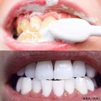 【超值实惠装】牙齿美白套装