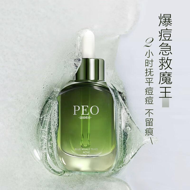 【第二件0元】PEO蓝鲸眼泪水 杨酸祛痘精华液 30ml